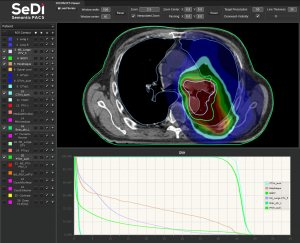 DICOM-RT-Viewer